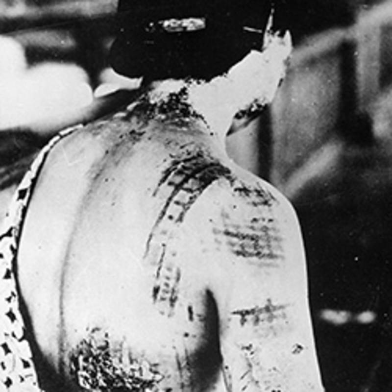 Female nuclear victim with severe burns. The pattern of her kimono, she was wearing while the explosion took place, was burned in her skin.